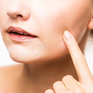 ニキビ・吹き出物がでやすい肌に|健康美人