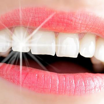 歯を白くする4つの方法